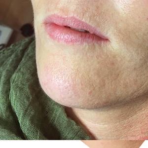 Full lips 1 before